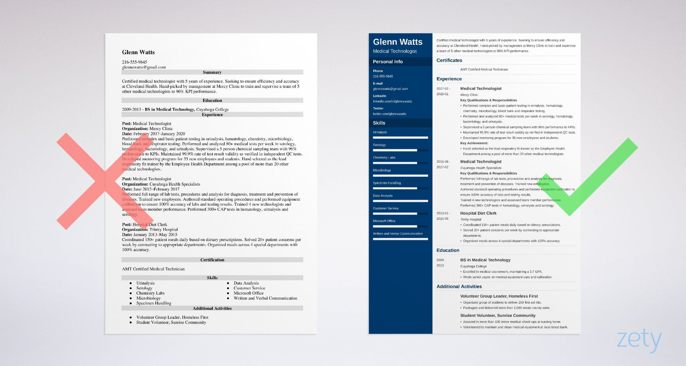 medical technologist resume templates
